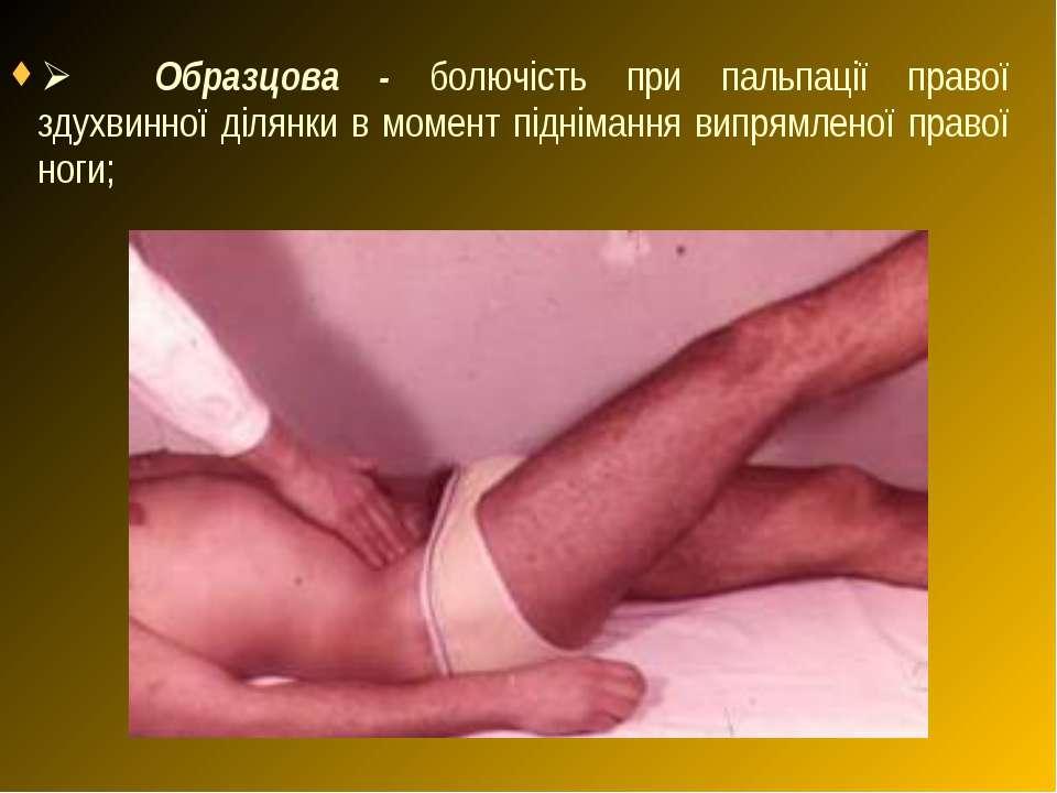 Ø Образцова - болючість при пальпації правої здухвинної ділянки в момент ...