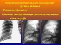 б) інвазивні, з використанням рентгеноконтрастних речовин: бронхографія Метод...