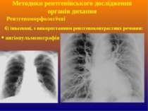 б) інвазивні, з використанням рентгеноконтрастних речовин: ангіопульмонографі...