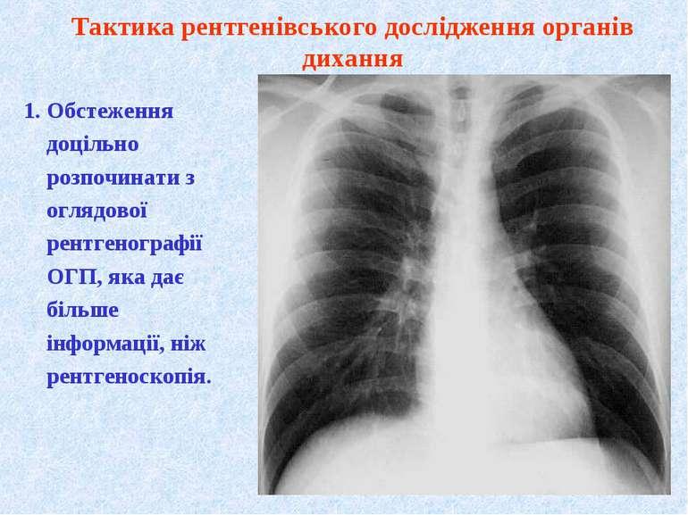 1. Обстеження доцільно розпочинати з оглядової рентгенографії ОГП, яка дає бі...