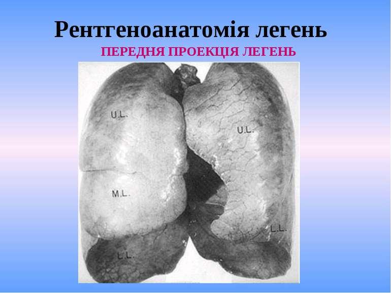 Рентгеноанатомія легень ПЕРЕДНЯ ПРОЕКЦІЯ ЛЕГЕНЬ