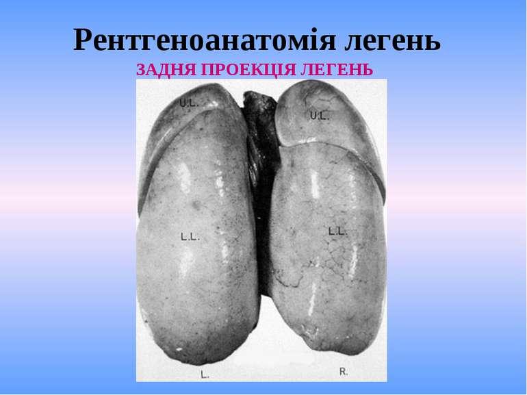 Рентгеноанатомія легень ЗАДНЯ ПРОЕКЦІЯ ЛЕГЕНЬ