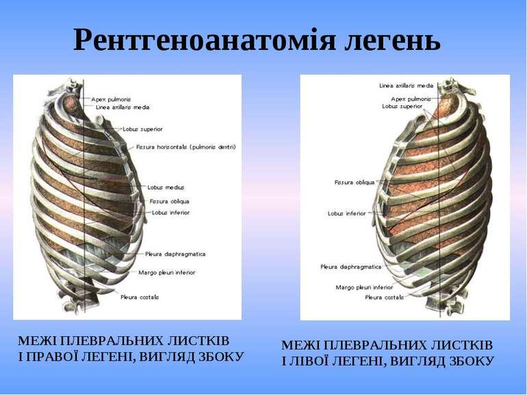Рентгеноанатомія легень МЕЖІ ПЛЕВРАЛЬНИХ ЛИСТКІВ І ПРАВОЇ ЛЕГЕНІ, ВИГЛЯД ЗБОК...