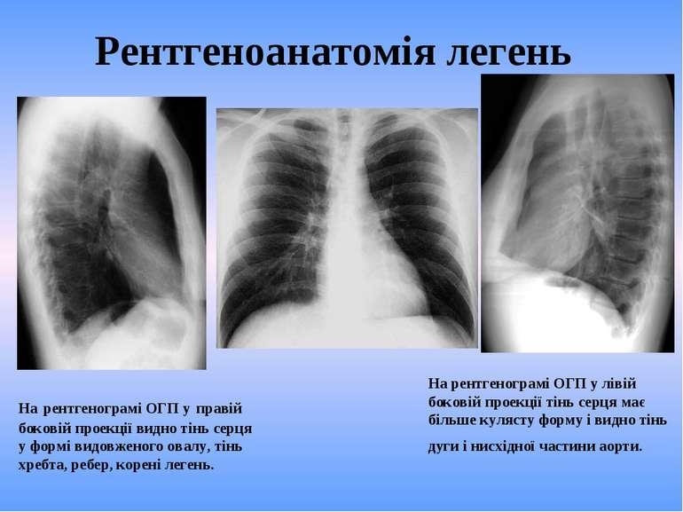 Рентгеноанатомія легень На рентгенограмі ОГП у лівій боковій проекції тінь се...