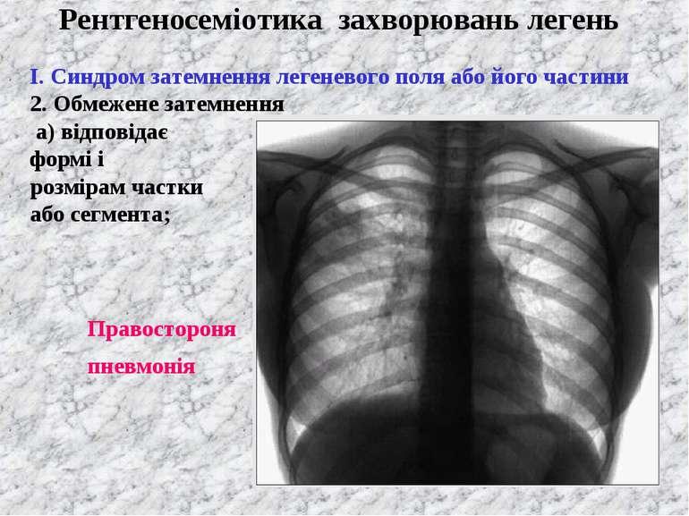Рентгеносеміотика захворювань легень І. Синдром затемнення легеневого поля аб...