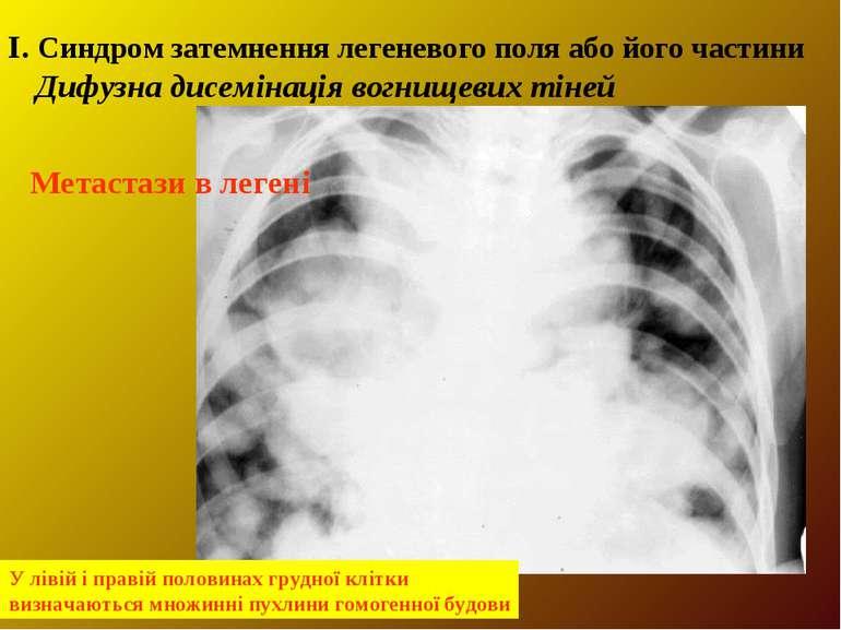І. Синдром затемнення легеневого поля або його частини Дифузна дисемінація во...