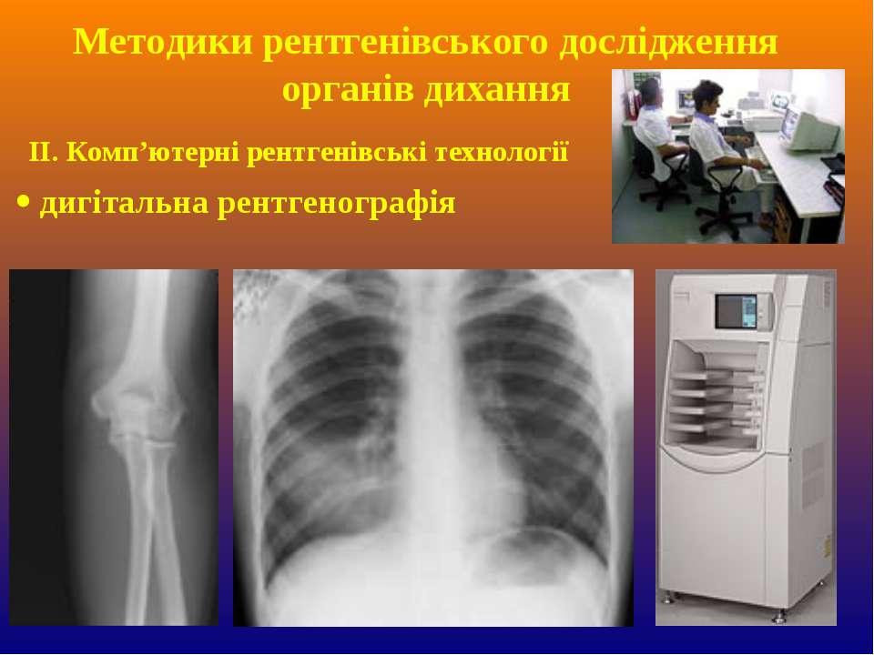 ІІ. Комп'ютерні рентгенівські технології дигітальна рентгенографія Методики р...