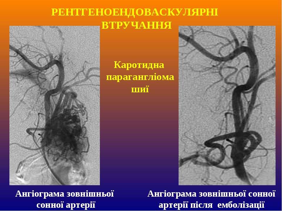 Каротидна парагангліома шиї Ангіограма зовнішньої сонної артерії Ангіограма з...