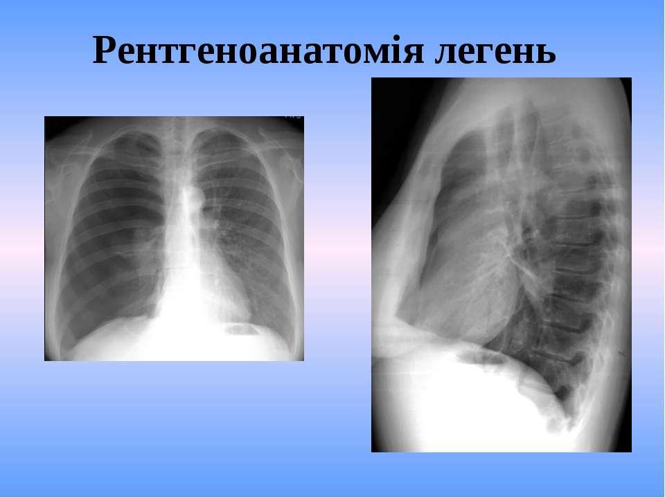 Рентгеноанатомія легень