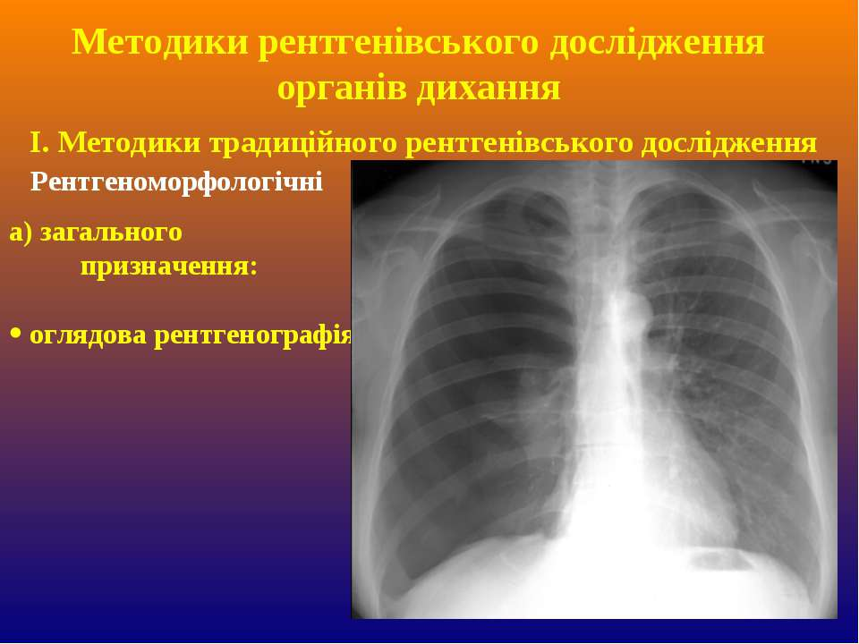Методики рентгенівського дослідження органів дихання