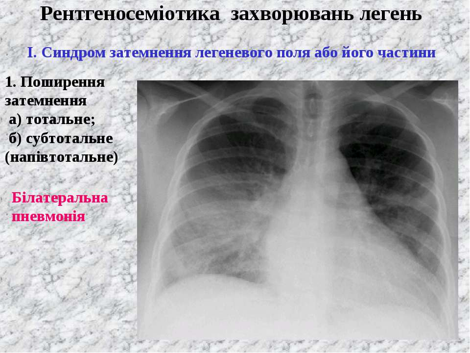 Рентгеносеміотика захворювань легень