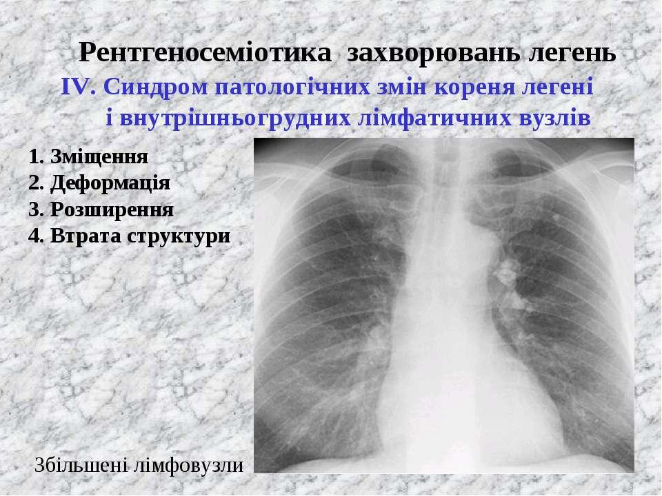Рентгеносеміотика захворювань легень ІV. Синдром патологічних змін кореня лег...