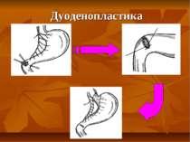 Дуоденопластика