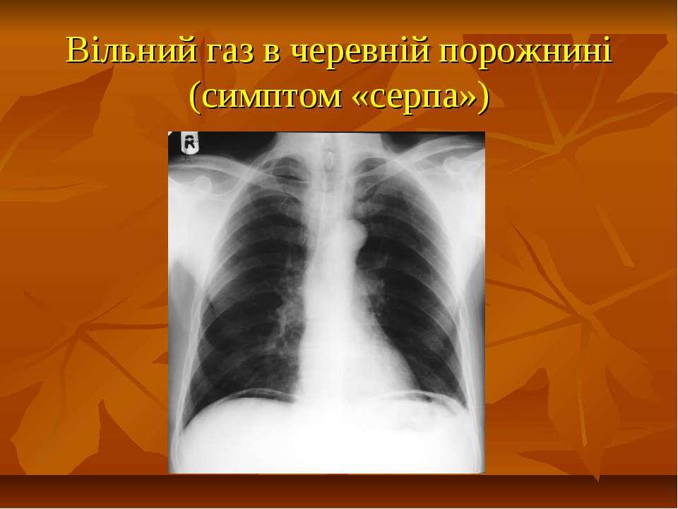 Вільний газ в черевній порожнині (симптом «серпа»)