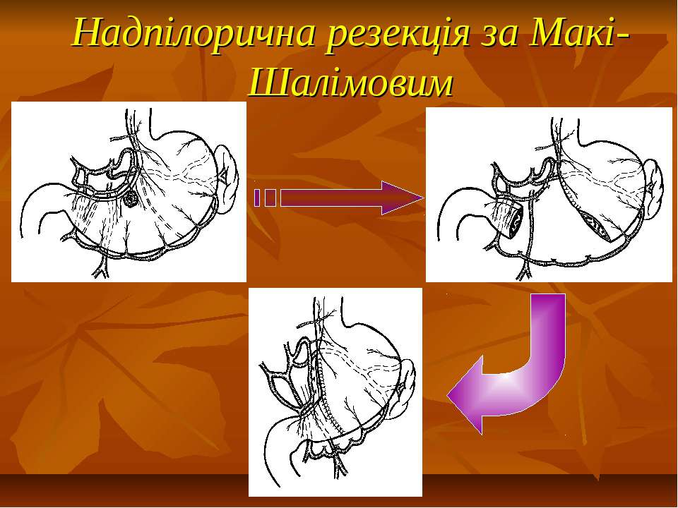 Надпілорична резекція за Макі-Шалімовим