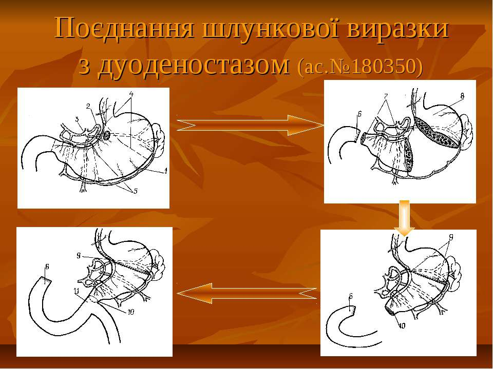 Поєднання шлункової виразки з дуоденостазом (ас.№180350)