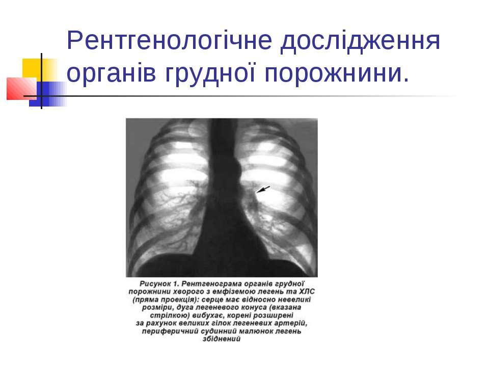 Рентгенологічне дослідження органів грудної порожнини.
