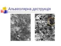 Альвеолярна деструкція