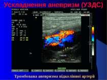 Ускладнення аневризм (УЗДС) Тромбована аневризма підколінної артерії