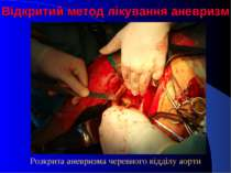 Відкритий метод лікування аневризм Розкрита аневризма черевного відділу аорти