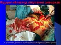 Відкритий метод лікування аневризм Сформовані дистальні анастомози аорто-біфе...