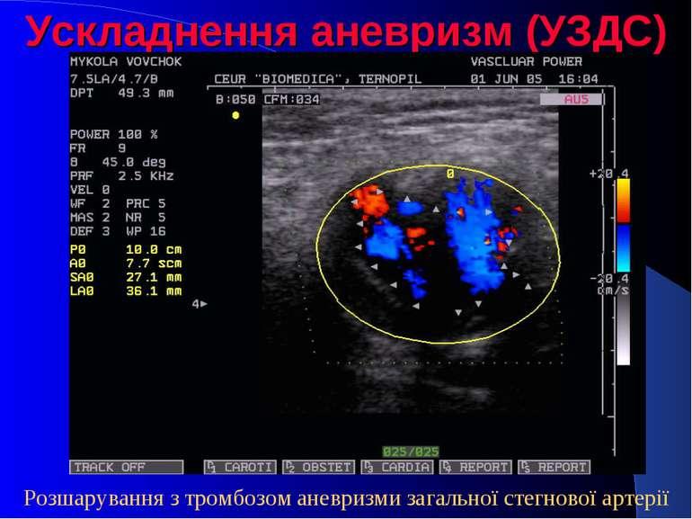 Ускладнення аневризм (УЗДС) Розшарування з тромбозом аневризми загальної стег...