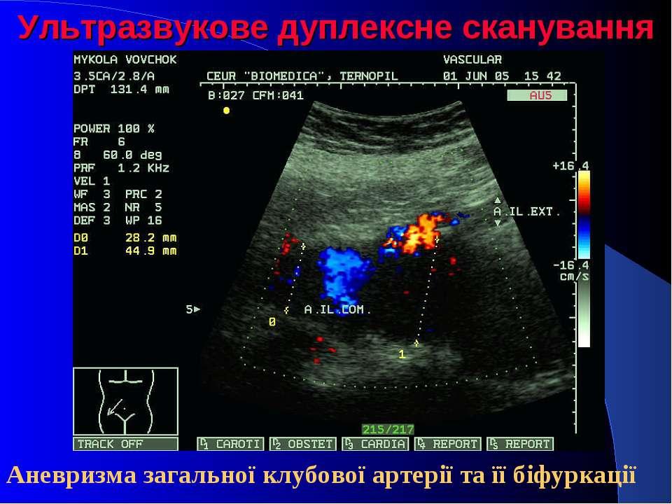 Ультразвукове дуплексне сканування Аневризма загальної клубової артерії та її...