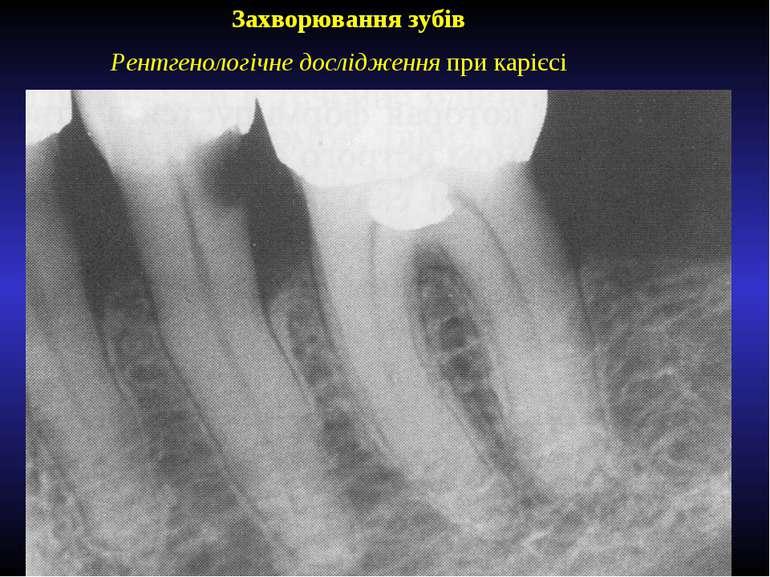 Захворювання зубів Рентгенологічне дослідження при карієсі
