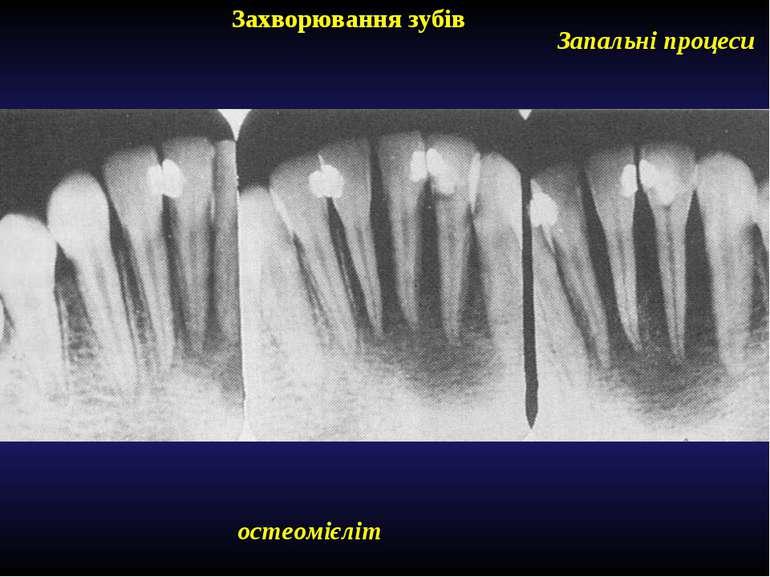 Захворювання зубів Запальні процеси остеомієліт