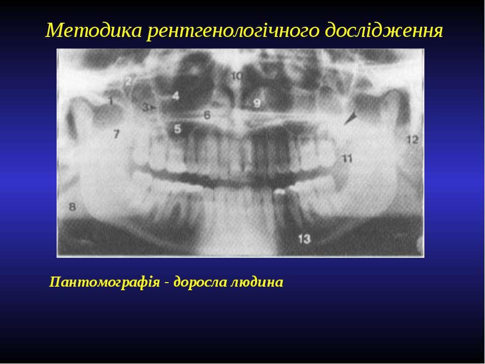 Методика рентгенологічного дослідження Пантомографія - доросла людина