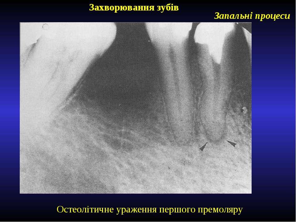 Захворювання зубів Запальні процеси Остеолітичне ураження першого премоляру