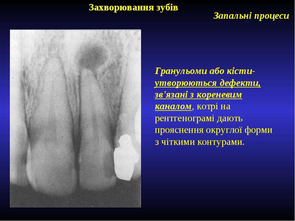Захворювання зубів Запальні процеси Гранульоми або кісти- утворюються дефекти...