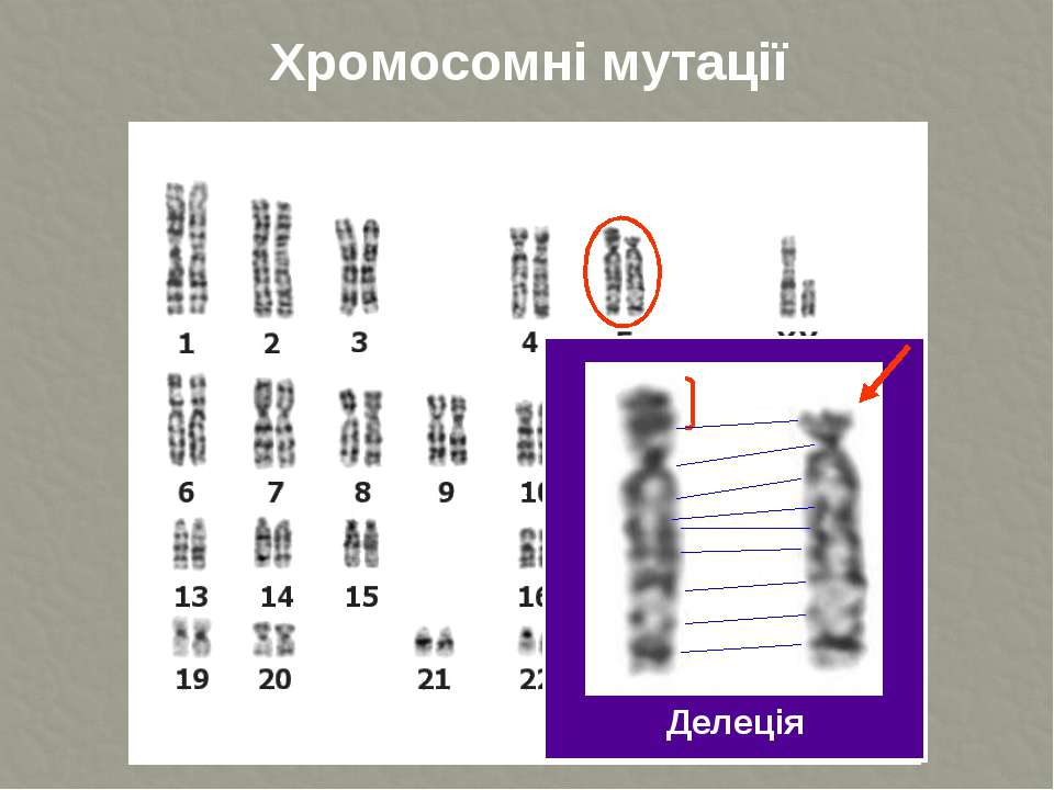 Хромосомні мутації Делеція ТДМУ