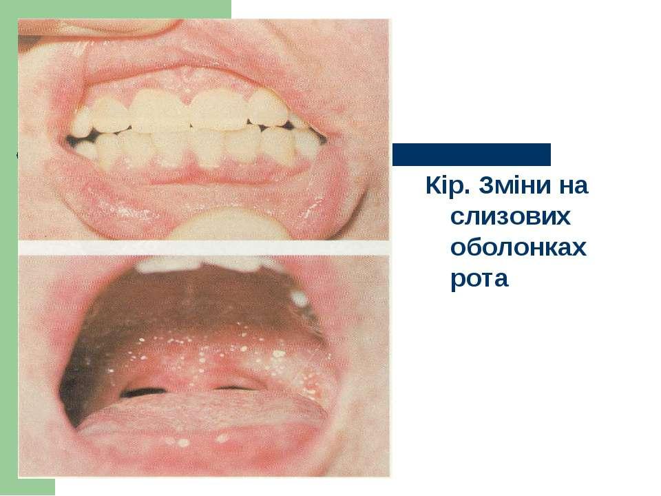Кір. Зміни на слизових оболонках рота