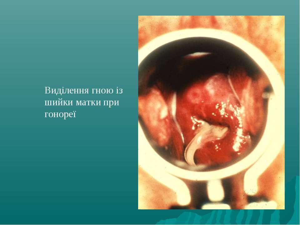 Виділення гною із шийки матки при гонореї