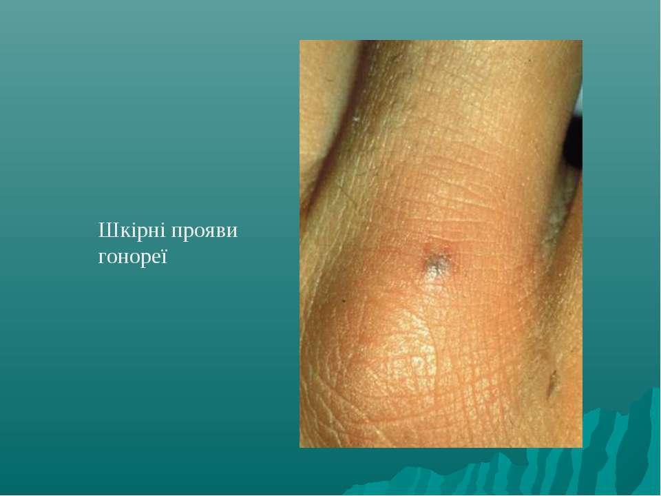 Шкірні прояви гонореї