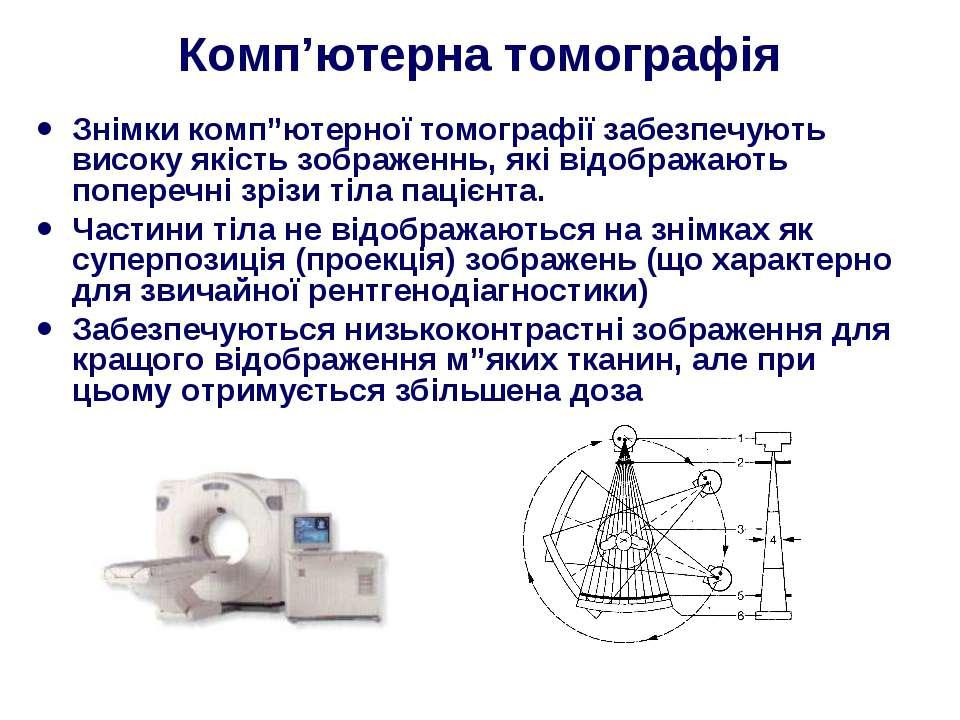 """Комп'ютерна томографія Знімки комп""""ютерної томографії забезпечують високу які..."""
