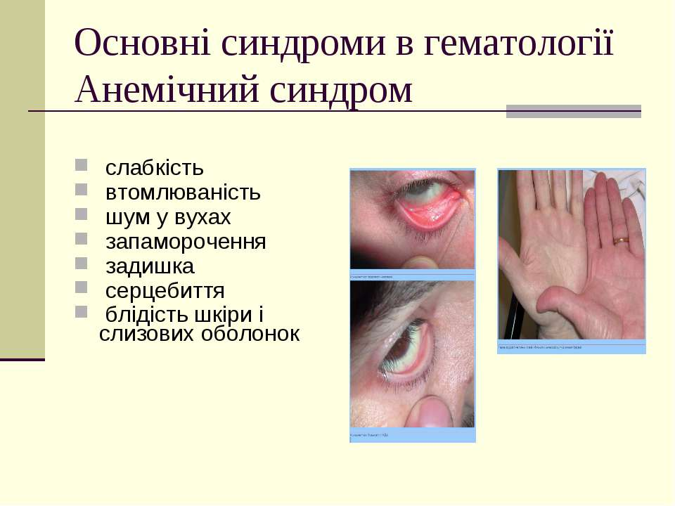 Основні синдроми в гематології Анемічний синдром слабкість втомлюваність шум ...