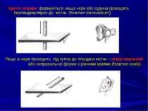 Круглі отвори формуються, якщо нерв або судина проходять перпендикулярно до к...