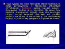 Якщо судина або нерв проходить строго паралельно кістці, доторкуючись із пове...