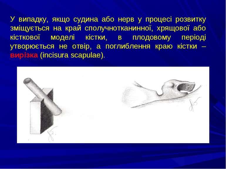 У випадку, якщо судина або нерв у процесі розвитку зміщується на край сполучн...