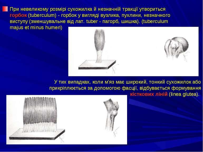 При невеликому розмірі сухожилка й незначній тракції утвориться горбок (tuber...