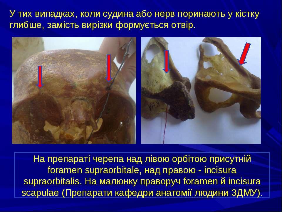 У тих випадках, коли судина або нерв поринають у кістку глибше, замість виріз...