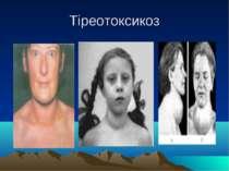 Тіреотоксикоз