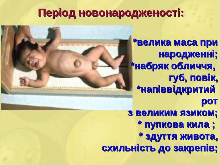 Період новонародженості: *велика маса при народженні; *набряк обличчя, губ, п...