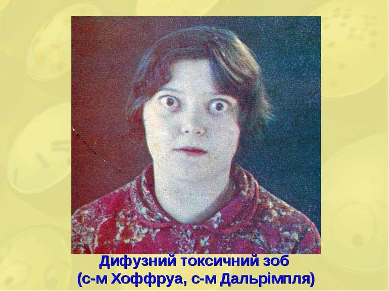 Дифузний токсичний зоб (с-м Хоффруа, с-м Дальрімпля)