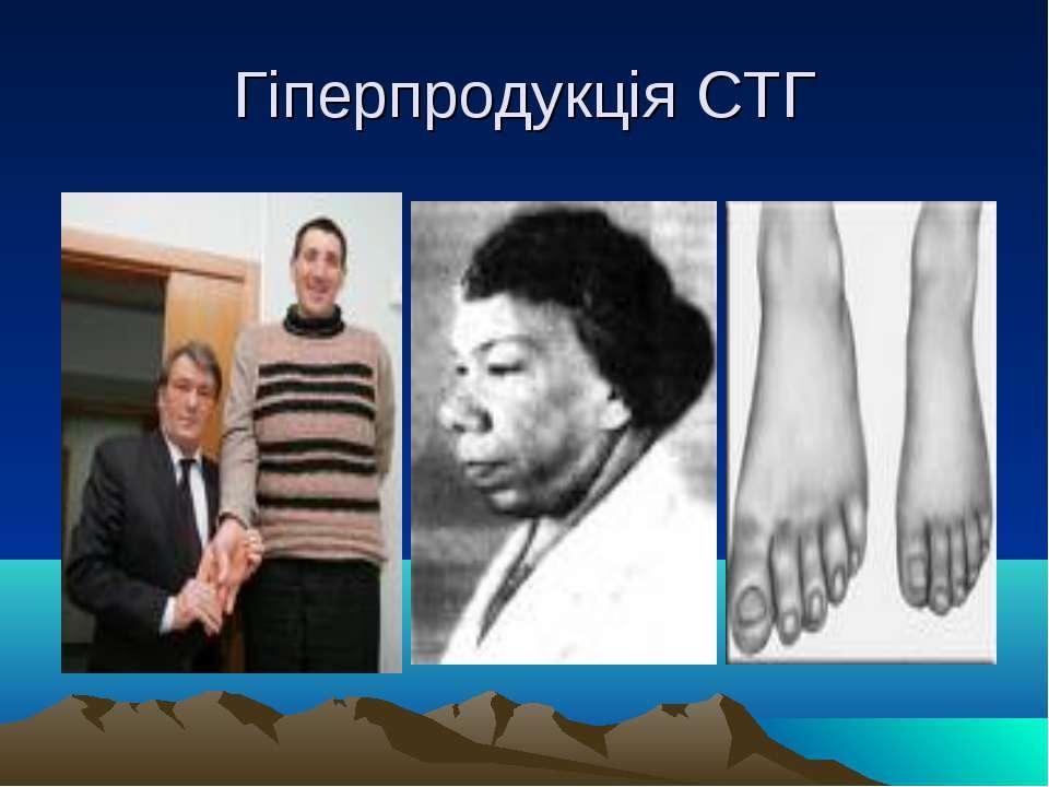 Гіперпродукція СТГ