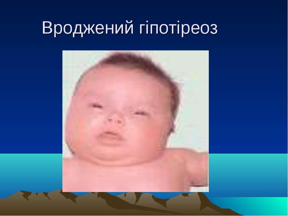 Вроджений гіпотіреоз