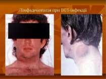 Лімфаденопатія при ВІЛ-інфекції