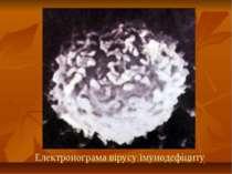 Електронограма вірусу імунодефіциту